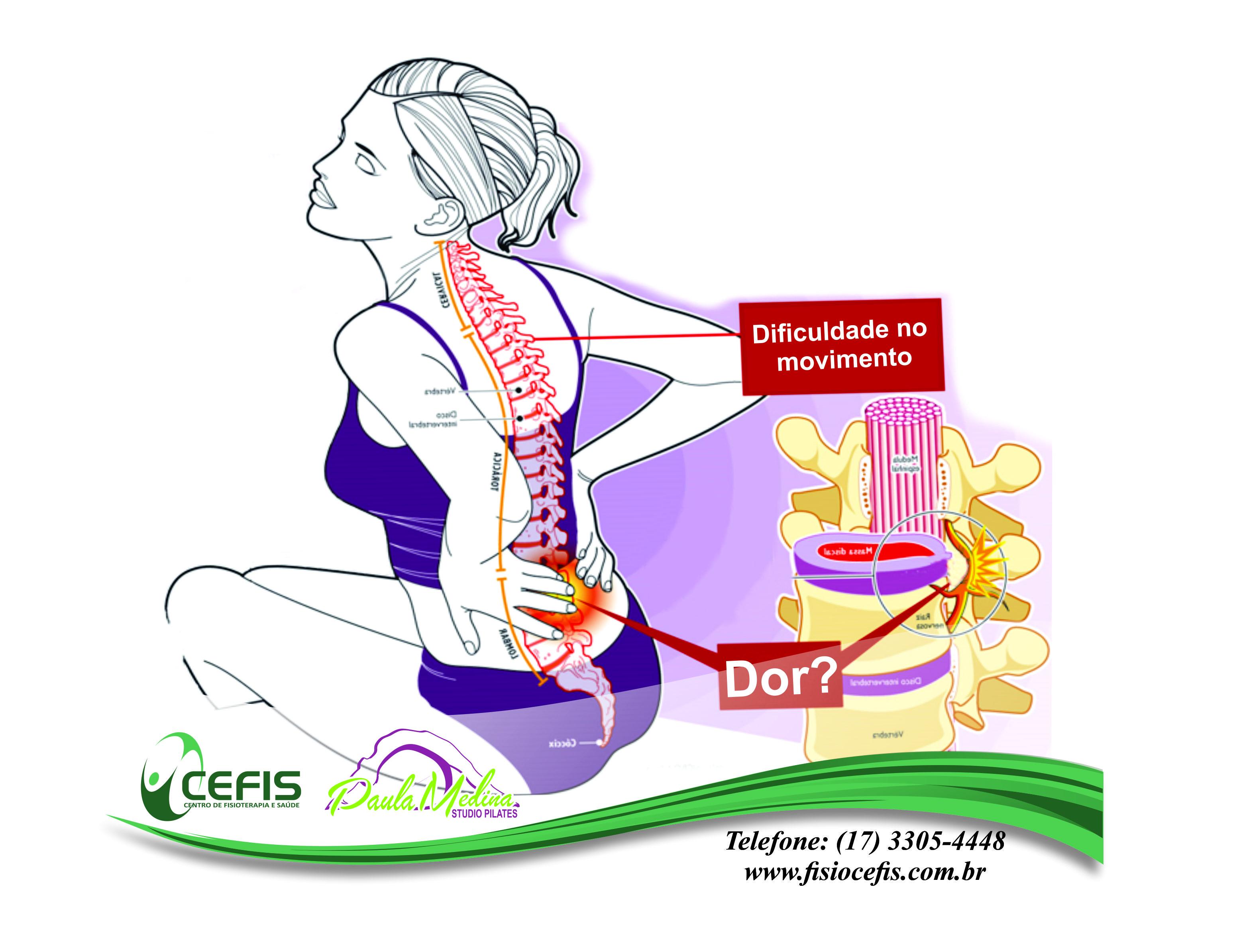 Lombociatalgia e Fisioterapia